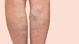 varicose deep viena alimente după operația de pe picior varicoză